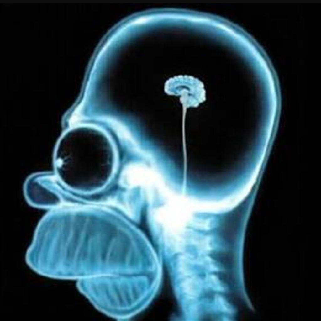 Nöroloji-IV tPA